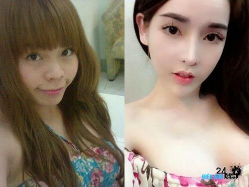 5 cô gái Việt đổi đời nhờ thẩm mỹ