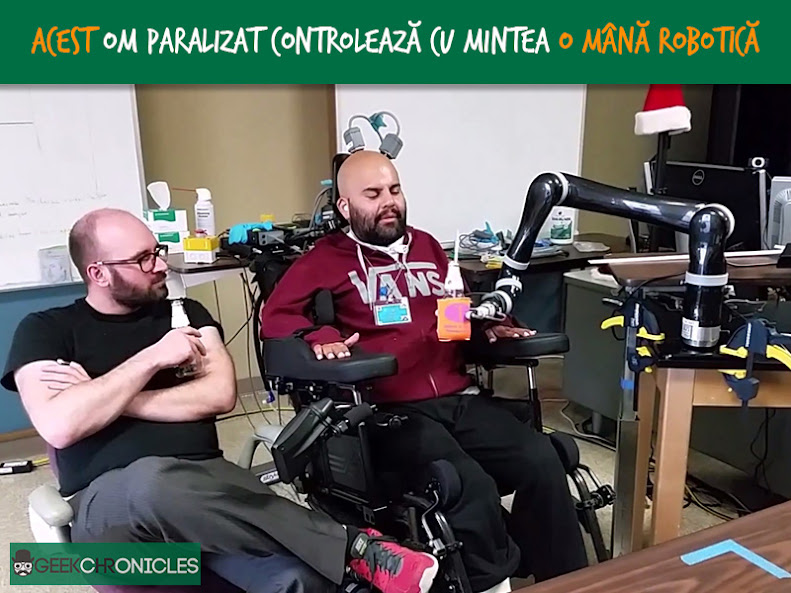 bionic arm controlez by brain
