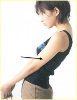 Observar forma de brazo en hombro
