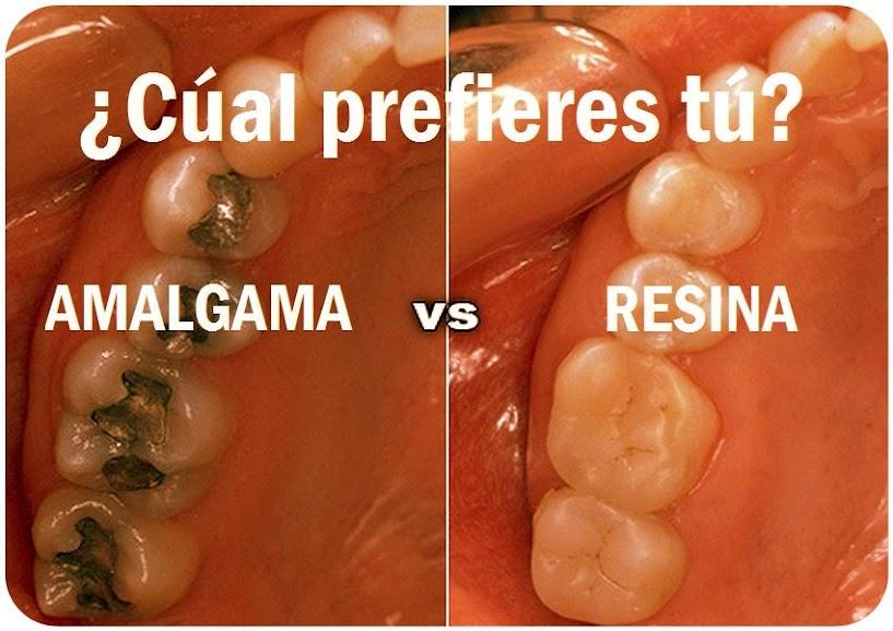 amalgama-resinas