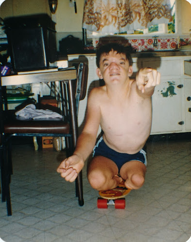 Robert Hoge as a young boy on a skateboard