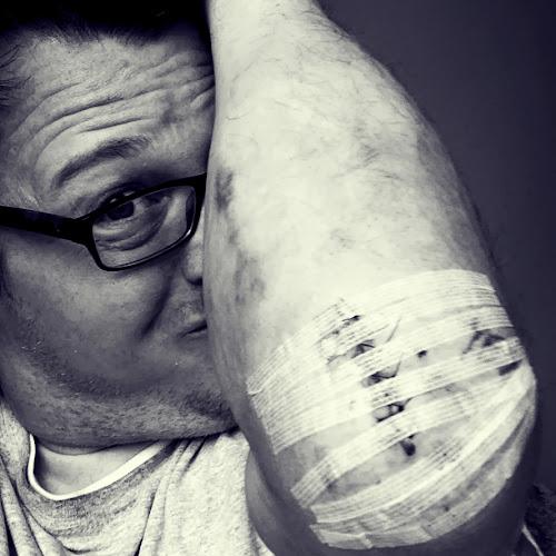 Just a flesh wound.