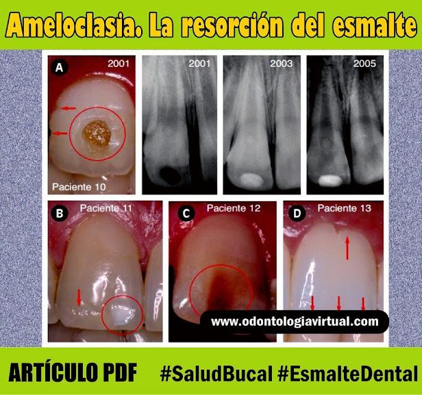 ameloclasia