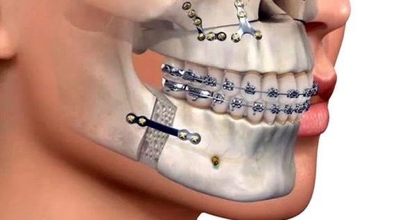 Pdf camuflaje ortod ntico vs cirug a ortogn tica ovi dental for W de porter ortodoncia