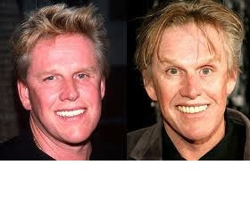garry bussey before and after jpgGary Busey Motorcycle Accident Before And After