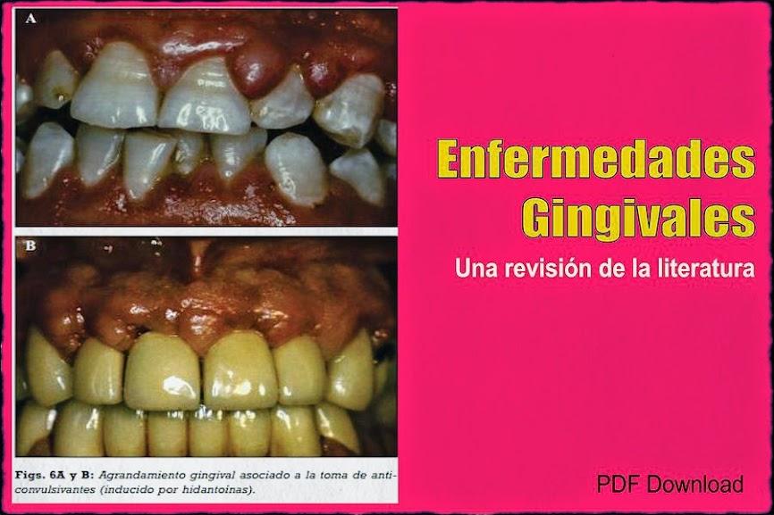 enfermedades-gingivales