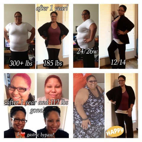 My Journey Through Roux En Y Gastric Bypass Surgery If They Tell
