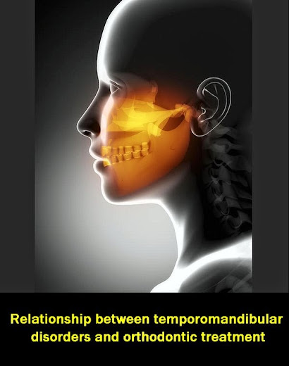 Temporomandibular_disorders