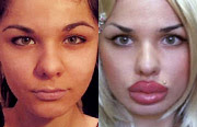 FCelebrities with lip injections