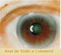 lh6.googleusercontent.com/-AnnczMqAFlU/VRB5KVbIiRI/AAAAAAAABx0/e6BJ5rLzxOw/w214-h194-no/E-aneldecolesterol%2B-%2BC%C3%B3pia.jpg