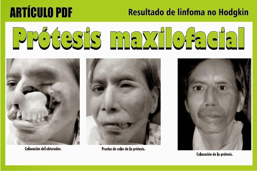 protesis-maxilofacial