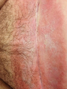 Clitoris yeast infection