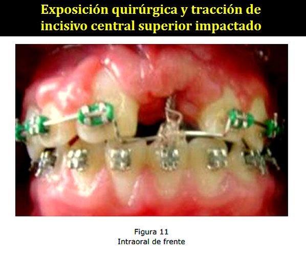 Pdf exposici n quir rgica y tracci n de incisivo central for W de porter ortodoncia