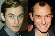 Celebrities Who Lost Their Hair