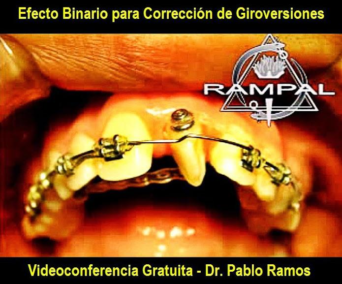 ortodoncia-giroversiones
