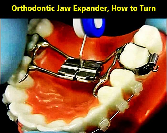 Jaw-Expander