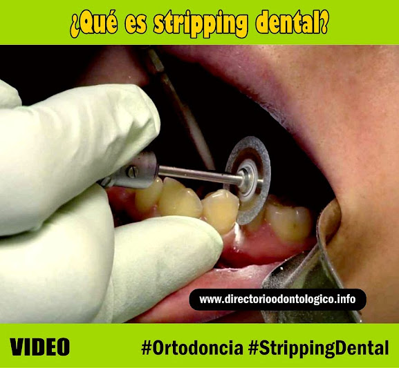 Stripping-dental