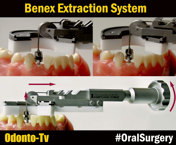 Benex-Extraction-System