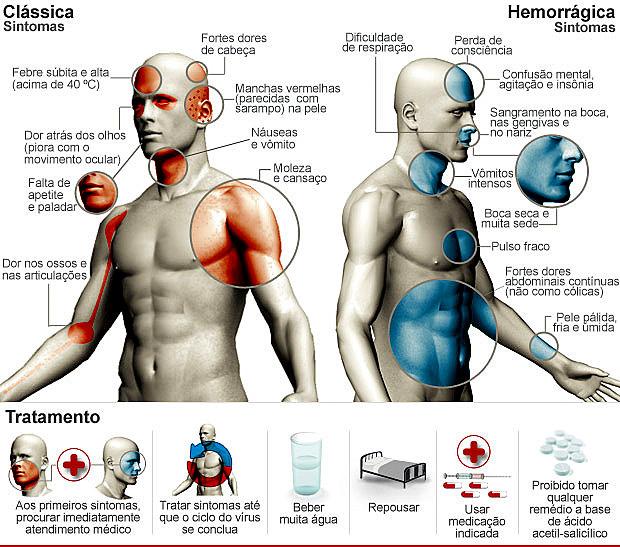 and acaba history ng by is edited de hul severe alta sintomas crianas
