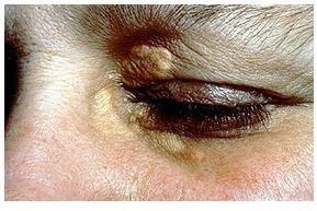 Mirtoplus Herbal Sakit Mata Tumor Kelopak Mata