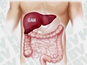 Nhận biết ung thư gan