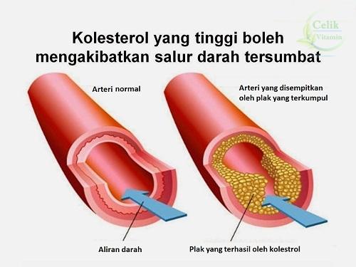 {focus_keyword} Golongan Yang Berisiko Ada Kolestrol Tinggi kolestrol celikvitamin