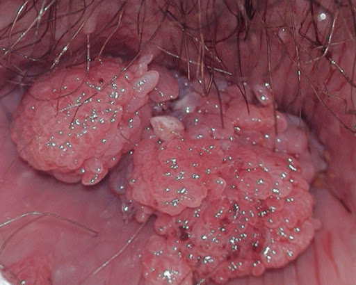 Medical Pictures Info – Condyloma