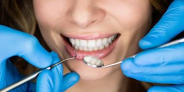Цены на услуги стоматолога в Мысках