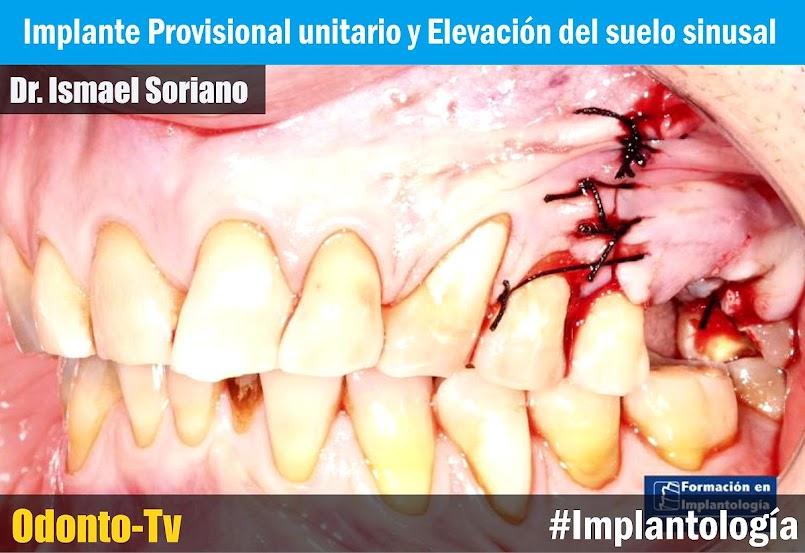 implante-unitario