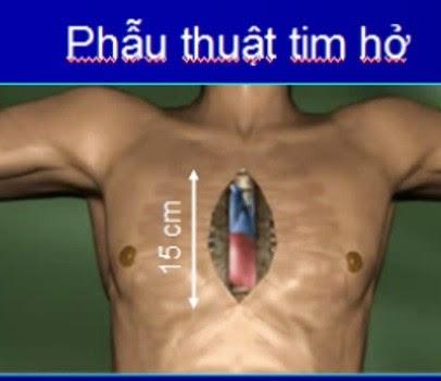 Phẫu thuật tim hở