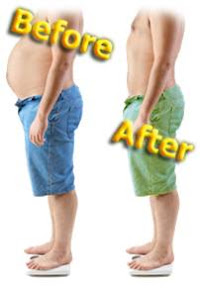 before-and-after-obesity