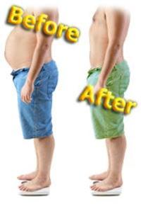 قبل و بعد علاج السمنة