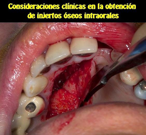 injertos-oseos-intraorales