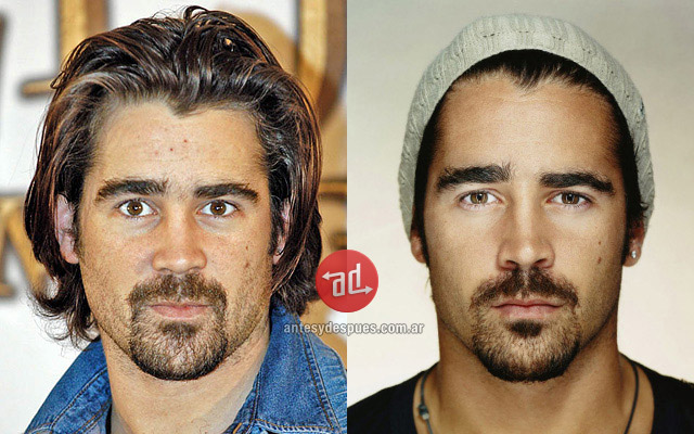 Photos of Colin Farrell with acne