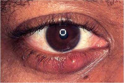 penyakit mata hordeolum