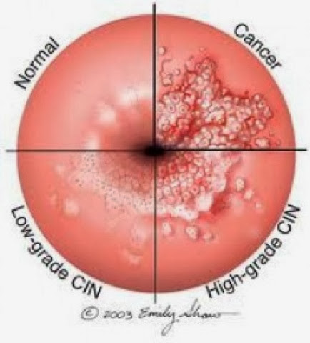 A Little Bit Western: My Battle with Cervical Cancer