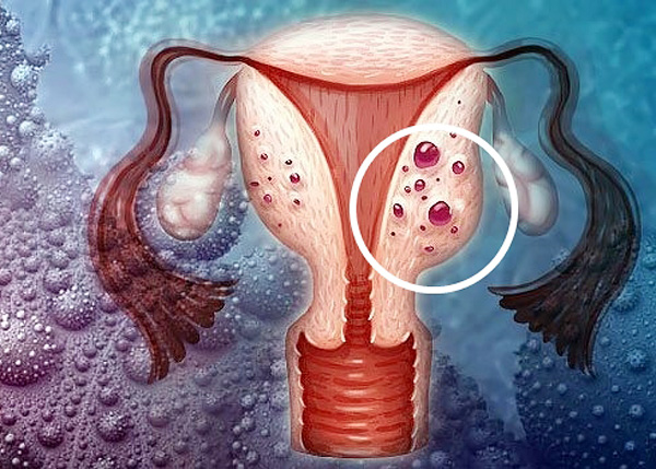Воспаление матки и аденомиоз. Есть ли между ними связь?