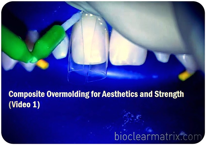 Composite-Overmolding