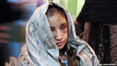 Afghani bride recovering from excruciating torture