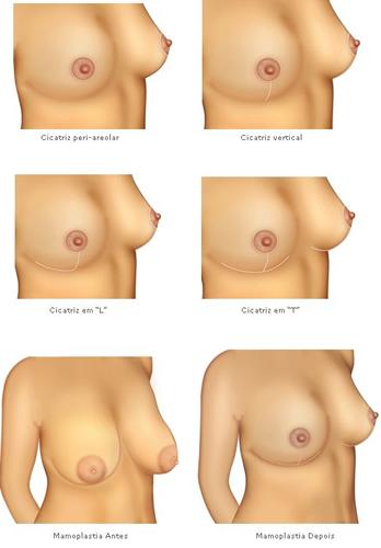 Mamoplastia-redutora-fotos