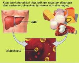 Cara Mengatasi Kolesterol Tinggi