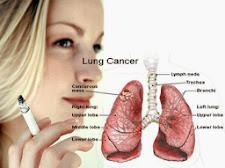 SUPER LUTEIN – Pengobatan Herbal Kanker Paru Paru Alami Dan Aman