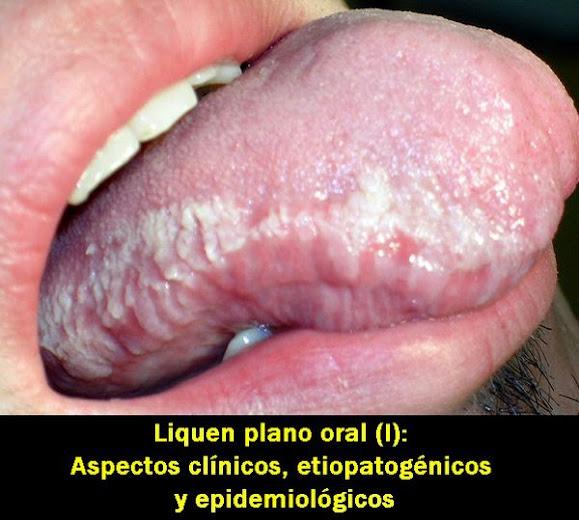 liquen-plano-oral