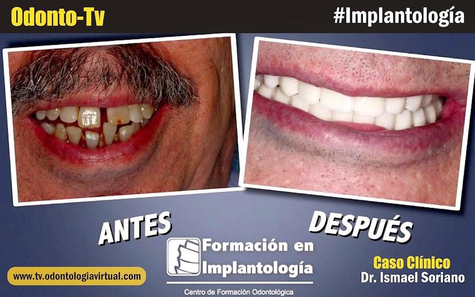 rehabilitacion-implantes-dentales