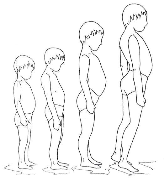Distrofia muscular: tipos, sintomas e tratamentos