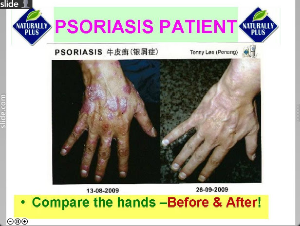 psoriasis2 Testimonial Naturally Plus