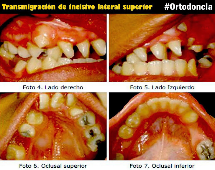 transmigracion-dental