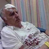 2010.09.29 (תמונות מפורשות) מאיר אינדור אחר מתקפה עליו ועל רעיתו באזור הר-הזיתים – קרדיט: צ. פישמן