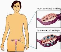 πολυκυστικές ωοθήκες, Κρόνιες, γενετικά μεταλλαγμένοι,polycystic ovaries, Saturn, genetically modified.
