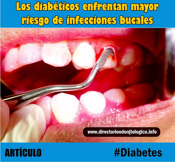 diabetes-infecciones-bucales.